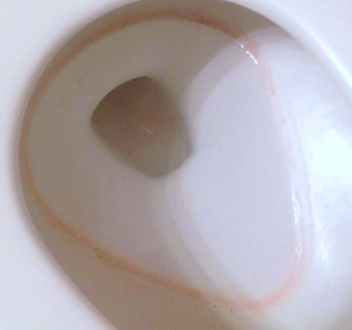 The pink stuff in your toilet bowl